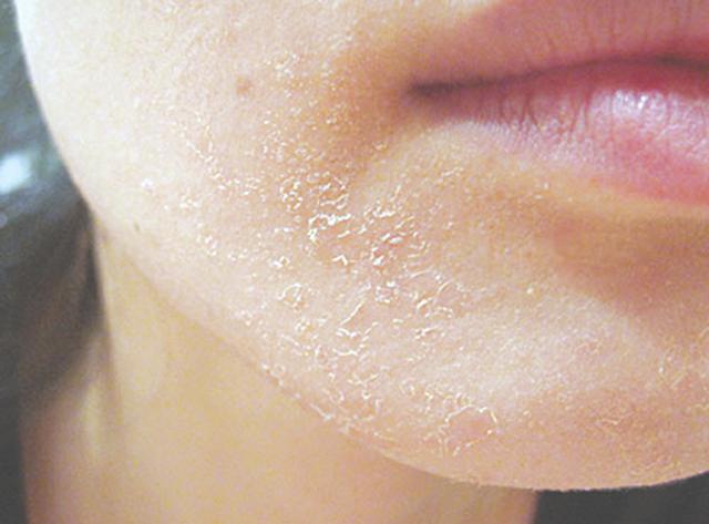 Da bị khô cũng là một trong những vấn đề da thường gặp phải