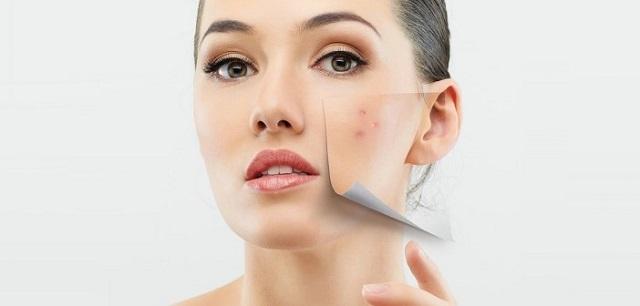 Lựa chọn kem trị mụn với những thành phần tốt cho da sẽ mang lại hiệu quả tốt