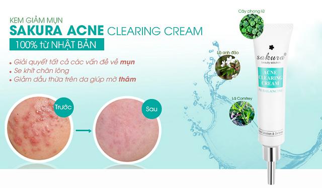 Kem trị mụn Sakura Acne Clearing Cream dành cho da dầu
