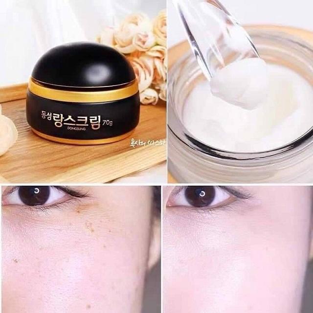 Kem trị nám Dongsung giúp nuôi dưỡng, bảo vệ và chăm sóc da