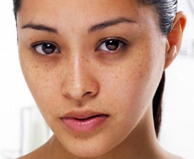 Điều trị nám và tàn nhang sẽ giúp bạn lấy lại vẻ tự tin khi đứng trước mọi người