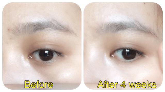 Bạn sẽ nhận thấy hiệu quả rõ rệt sau thời gian sử dụng kem dưỡng mắt Skii đều đặn